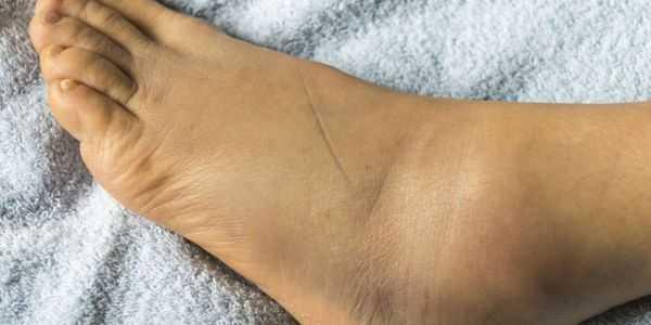 inchaço nas pernas direita de um lado não pode dobrar ou mover os dedos