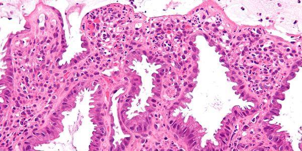 infarto do intestino e isquemia provoca tratamento dos sintomas