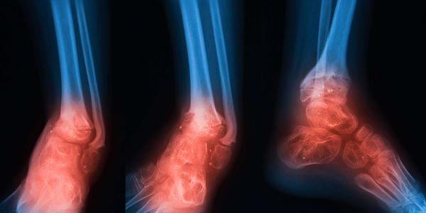infecção óssea osteomielite aguda e crônica