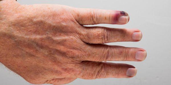 infecção do sangue ou sepse provoca sintomas sinais de tratamento