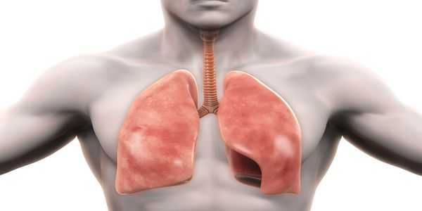 infecção pulmonar por pneumonia fúngica causa sintomas