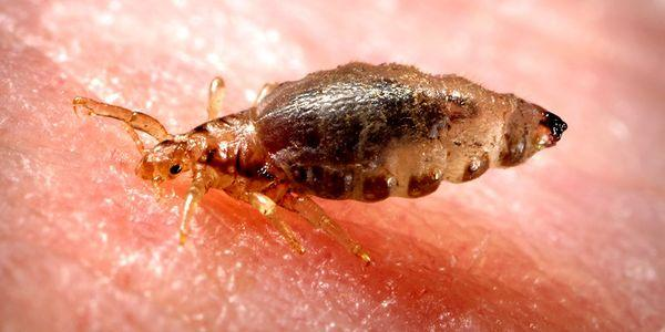 infestação de piolhos do corpo pediculosis corporis information