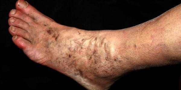 insuficiência venosa das causas das pernas