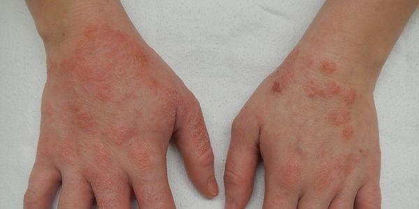 mão dermatite eczema das mãos