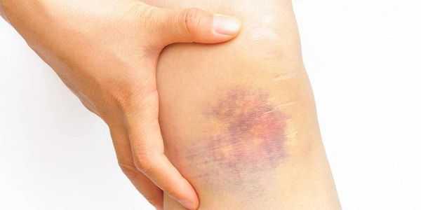 machucar facilmente pele equimose razões causas