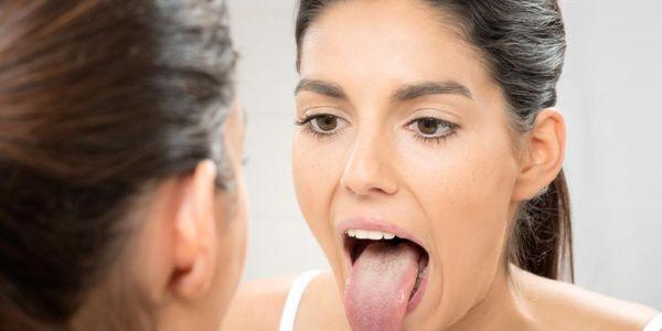 manchas brancas leucoplasia oral dentro da boca