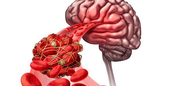 mecanismo de processo de hemostasia para parar a perda de sangue