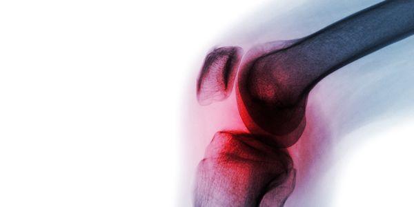 morte óssea osteonecrose do joelho