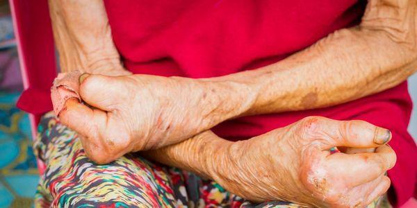 nervos fracos que significam causas tipos sintomas