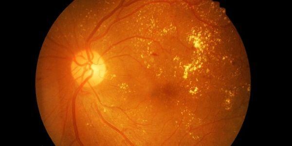 o que é diabetes retinopatia diabetes retina sintomas da doença