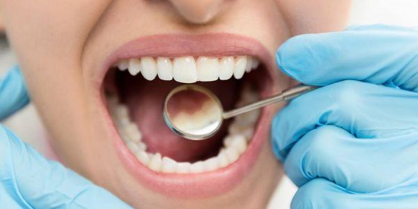 o que é um dente cavidade sintomas e processo de cárie dentária