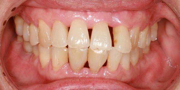 o que são diferenças e tratamento dos tipos de periodontite