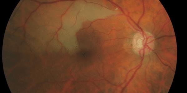 oclusão da artéria retiniana por acidente vascular cerebral