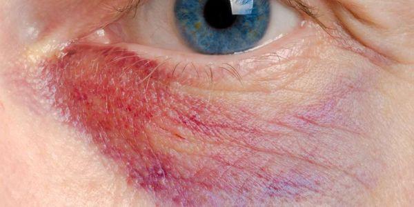olhos sensíveis significado significa tratamento de sintomas