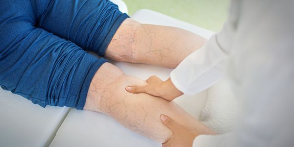 perna hematomas manchas azuis roxas vermelhas nas pernas causas e tratamento