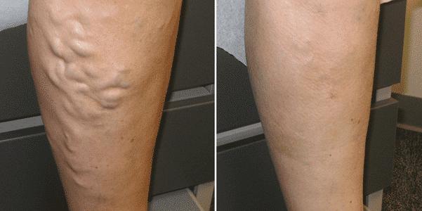 perna veias coxa perna anatomia imagens e nomes