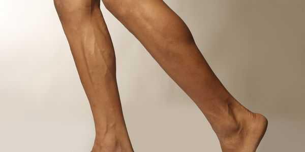 pernas fracas perda de força em uma ou ambas as pernas causas