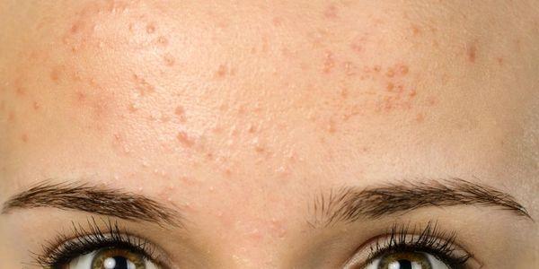 problemas de pele erupção testa causas e imagens