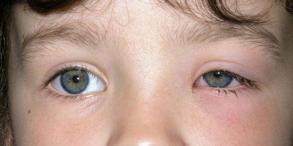 remédios para bolsas sob os olhos em adultos