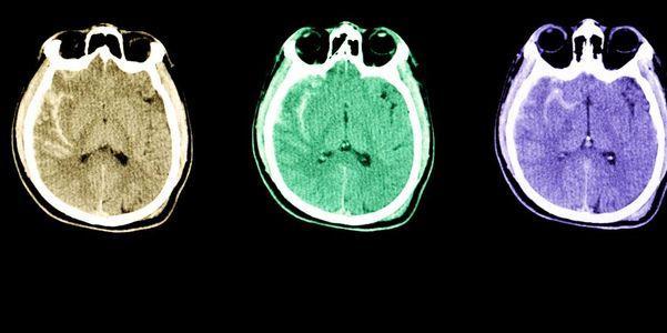 sangramento no cérebro e sangramentos cranianos hematoma hemorragia