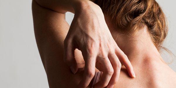 sarna pele infestação crianças adultos fotos tratamento