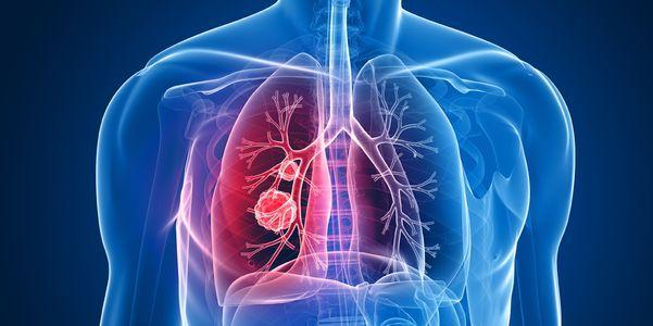 sinais de câncer de pulmão e fatos sobre tumores de pulmão