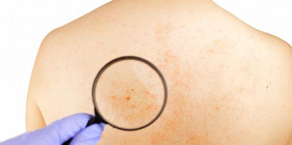 sinais de câncer (sintomas gerais e específicos)