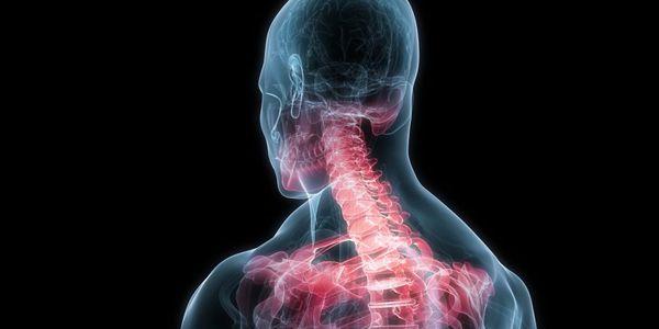 sinais de chicotada (tensão no pescoço) e síndrome de chicotada tardia