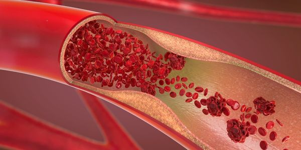 sinais de doença arterial coronariana (DAC)