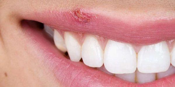 sinais de herpes (oral e genital), primeiros sintomas, fotos