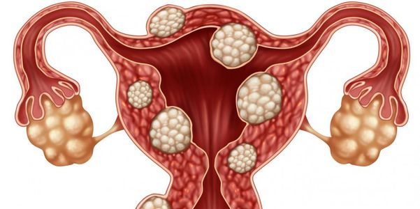 sinais de miomas no útero e risco de câncer