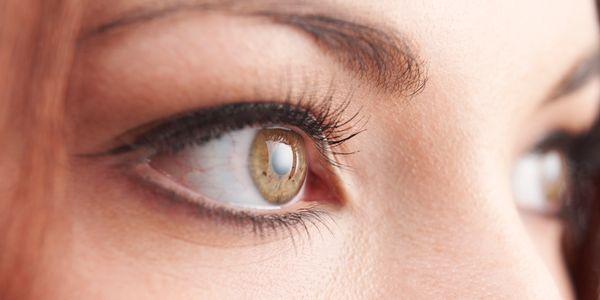 sinais de olhos de catarata e como a catarata afeta a visão