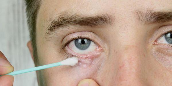 sintomas e tratamento dos tipos de ácaros do folículo piloso demodex