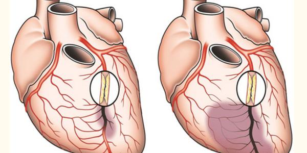 suprimento de sangue da artéria coronária para o coração