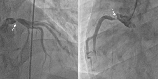 takayasu arterite doença sem pulso doença arterial grande