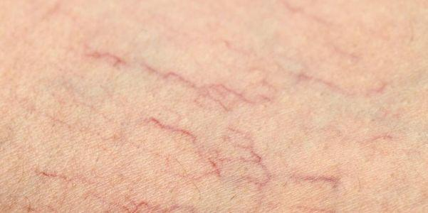 telangiectasia minúsculos vasos sanguíneos visíveis na pele