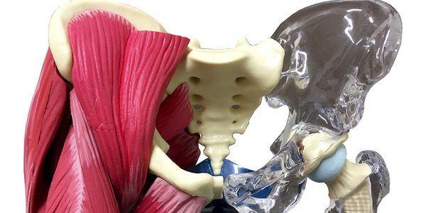 tempo de recuperação de substituição da anca e restrições