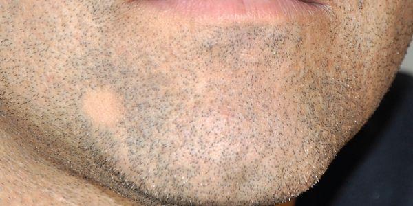 tinea barbae barba fungo causa tratamento de fotos