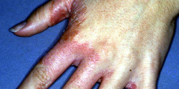 tinea manuum hand fungus causa tratamento de imagens de sintomas