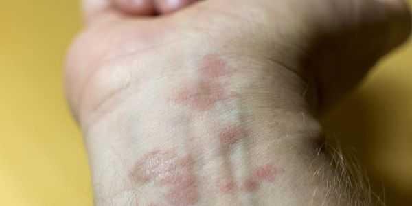 tipos de dermatite de contato causam tratamento de fotos