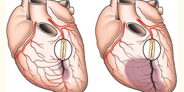 tratamento de oclusão arterial dieta exercício medicação