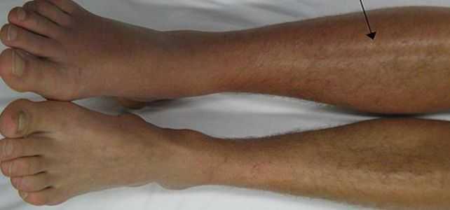 trombose venosa profunda perna veia coágulo dvt fotos sintomas