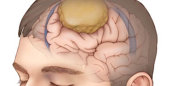 tumor meningioma das meninges