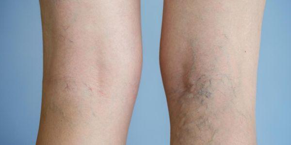 veias dolorosas provoca sintomas fotos tratamentos