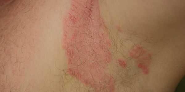 virilha fungo tinea cruris provoca sintomas tratamento