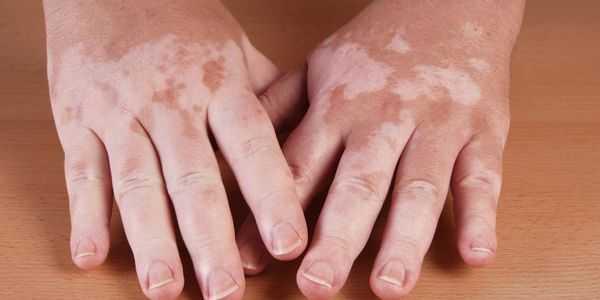 vitiligo doença de pele branca irregular faz sintomas fotos